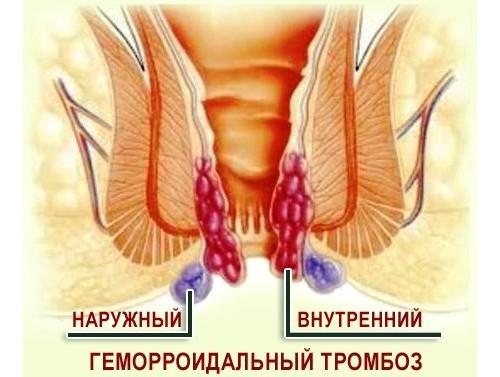 Геморрой симптомы и лечение
