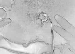 Диагностика свищей прямой кишки