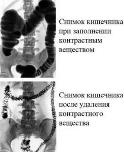 Ирригоскопия фото снимков