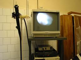 Колоноскоп