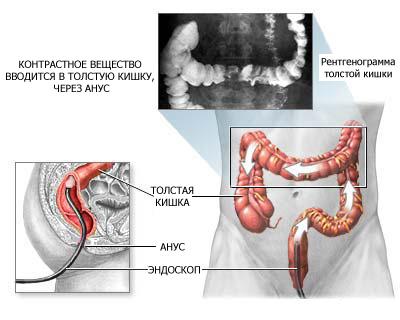 Препараты от паразитов в организме человека немозол