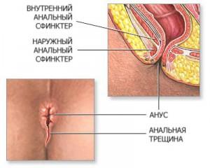 Геморрой - Народная медицина - рецепты