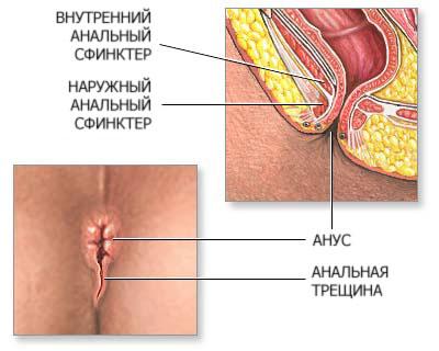 opuholi-analnogo-koltsa