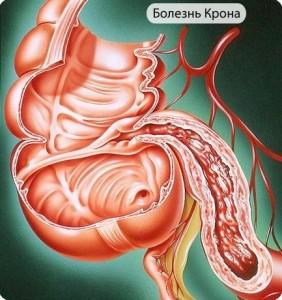Энтеровирус или кишечная палочка? Ученые продолжают искать причину болезни Крона