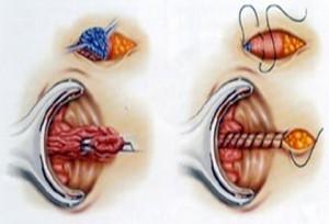 Закрытая геморроидэктомия
