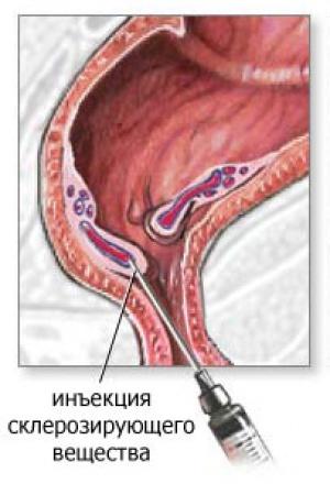 Удаление внутренних геморроидальных узлов