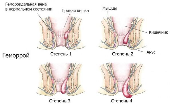 Лечение геморроя народными средствами, лечим геморрой в ...