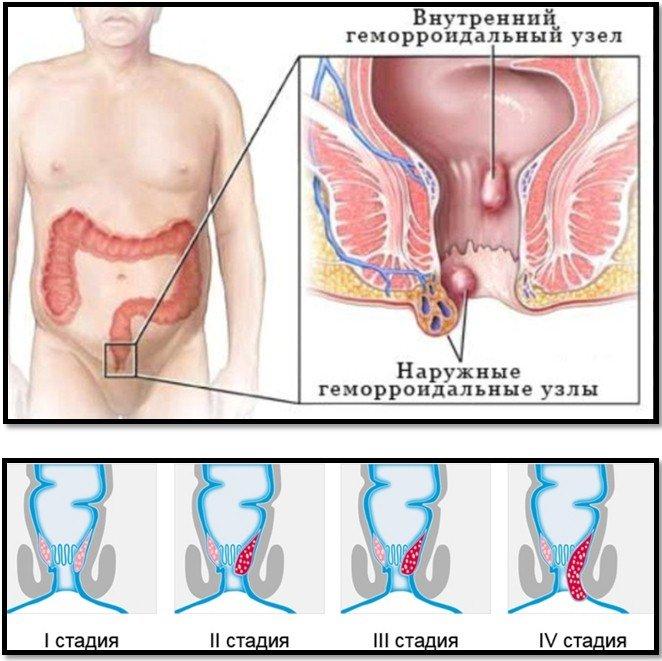 Геморрой зуд во время беременности