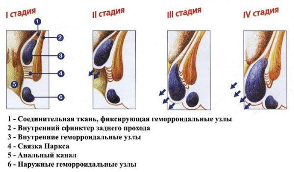 Вокруг анального отверстия болезненные шишки что это