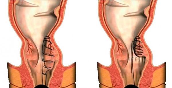 Лечение геморроя при помощи процедур