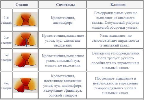 Классификация геморроя