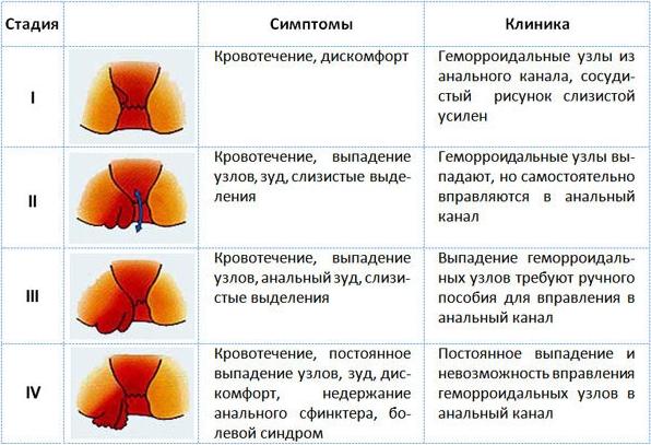 Различные стадии заболевания