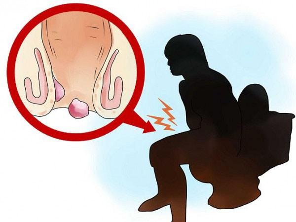 Основные симптомы геморроя