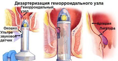 Малоинвазивные способы лечения...